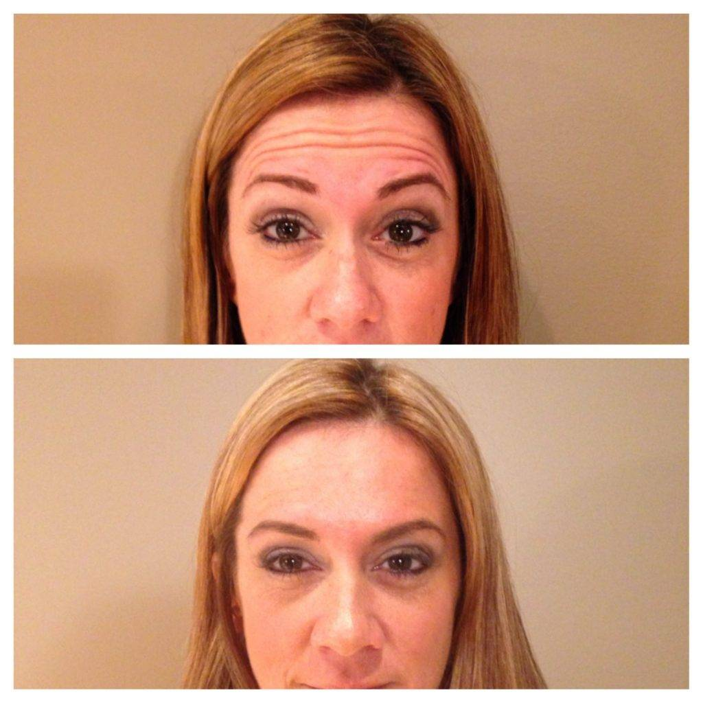 Before and after Botox treatments