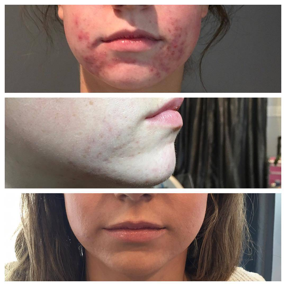 Acne treatments before and after results