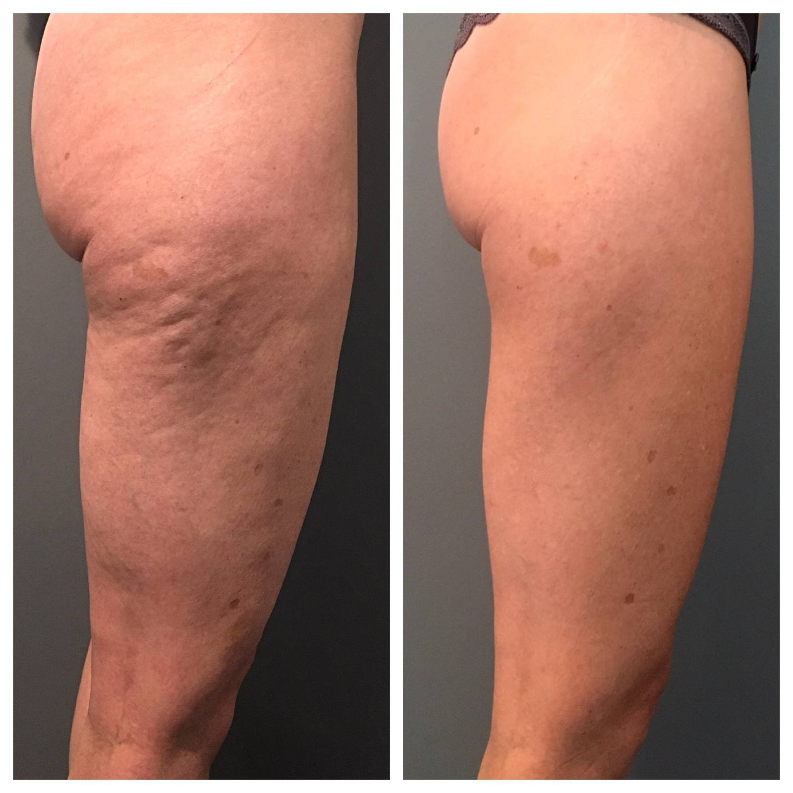 Before and after cellulite treatments