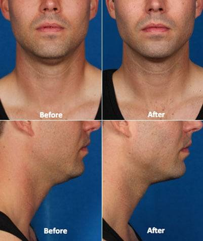 KYBELLA before and after #2