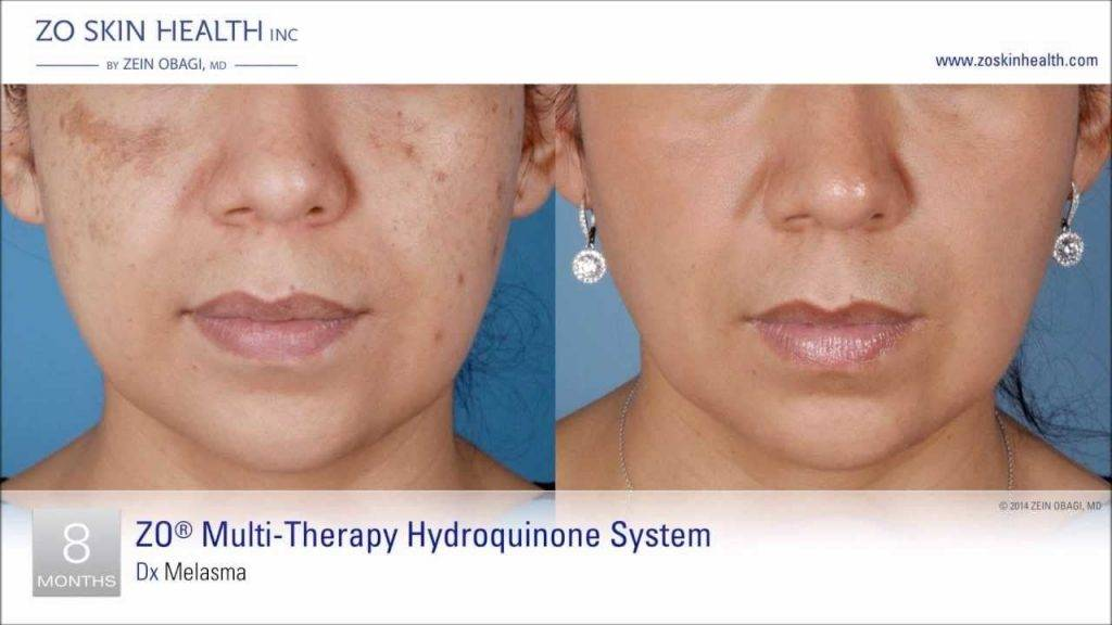 Before and after melasma treatments