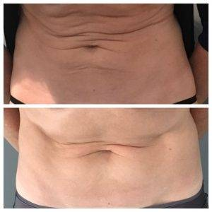 Before and after skin tightening treatments